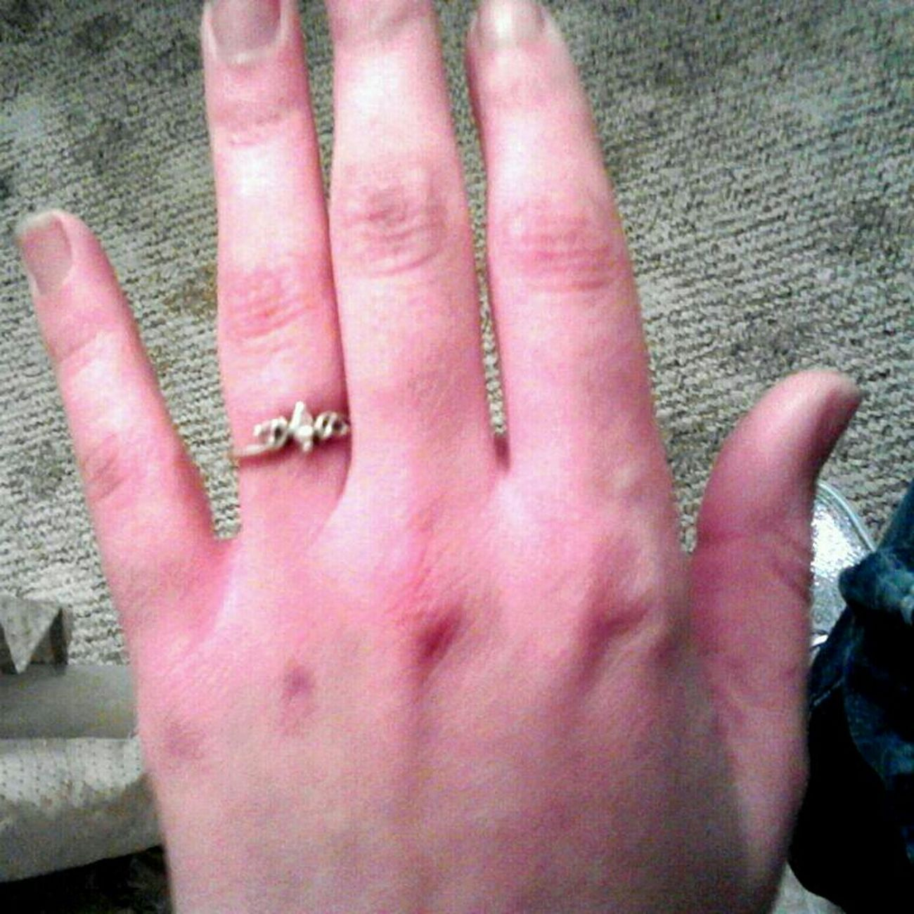 This cold got my hands lookin weird nn red af !!