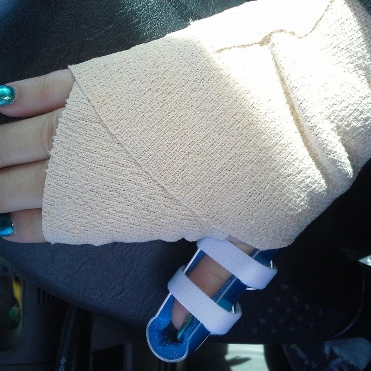 Happy Friday! Clumsy  Idance  Injuries Ugh