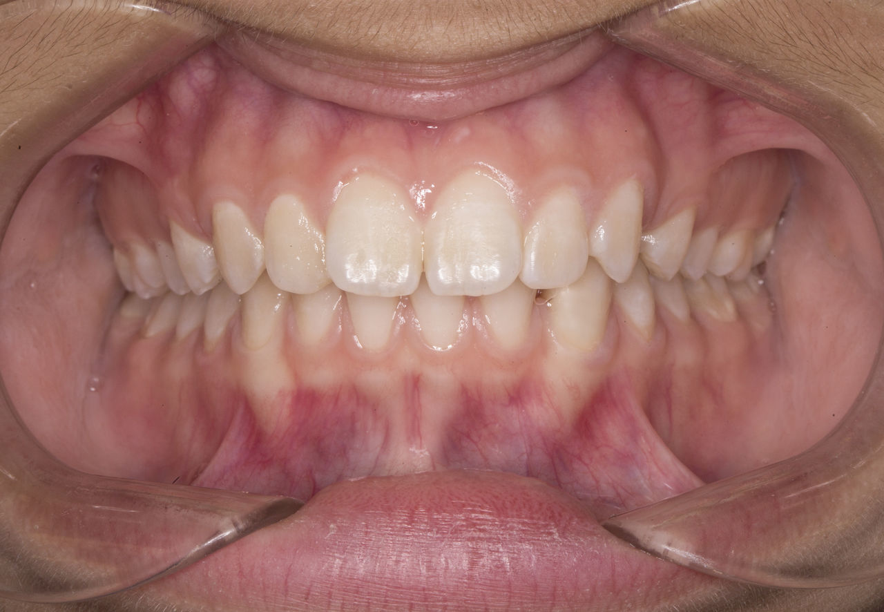 Your whole mouth as you never see it before :) Close-up Dental Human Body Part Human Lips Human Teeth Macro Smile Teeth