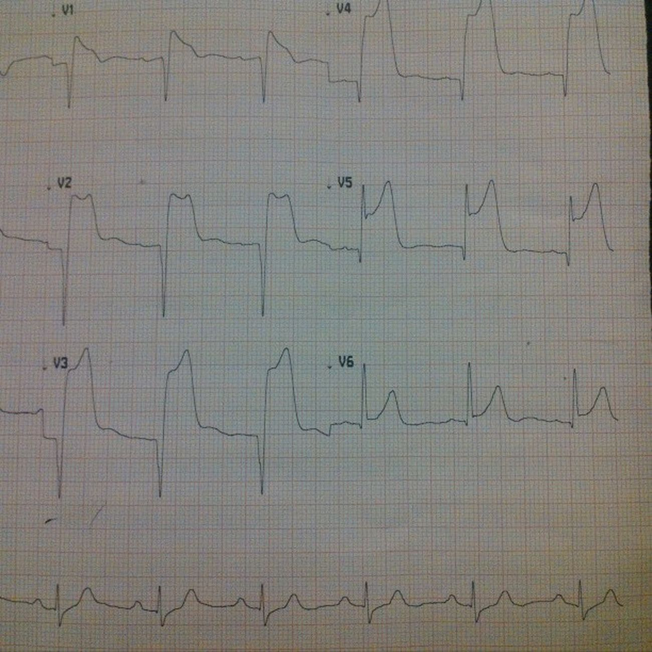 "The ""silent"" killer. STEMI Brugadisyndrome Cvicu ECG"