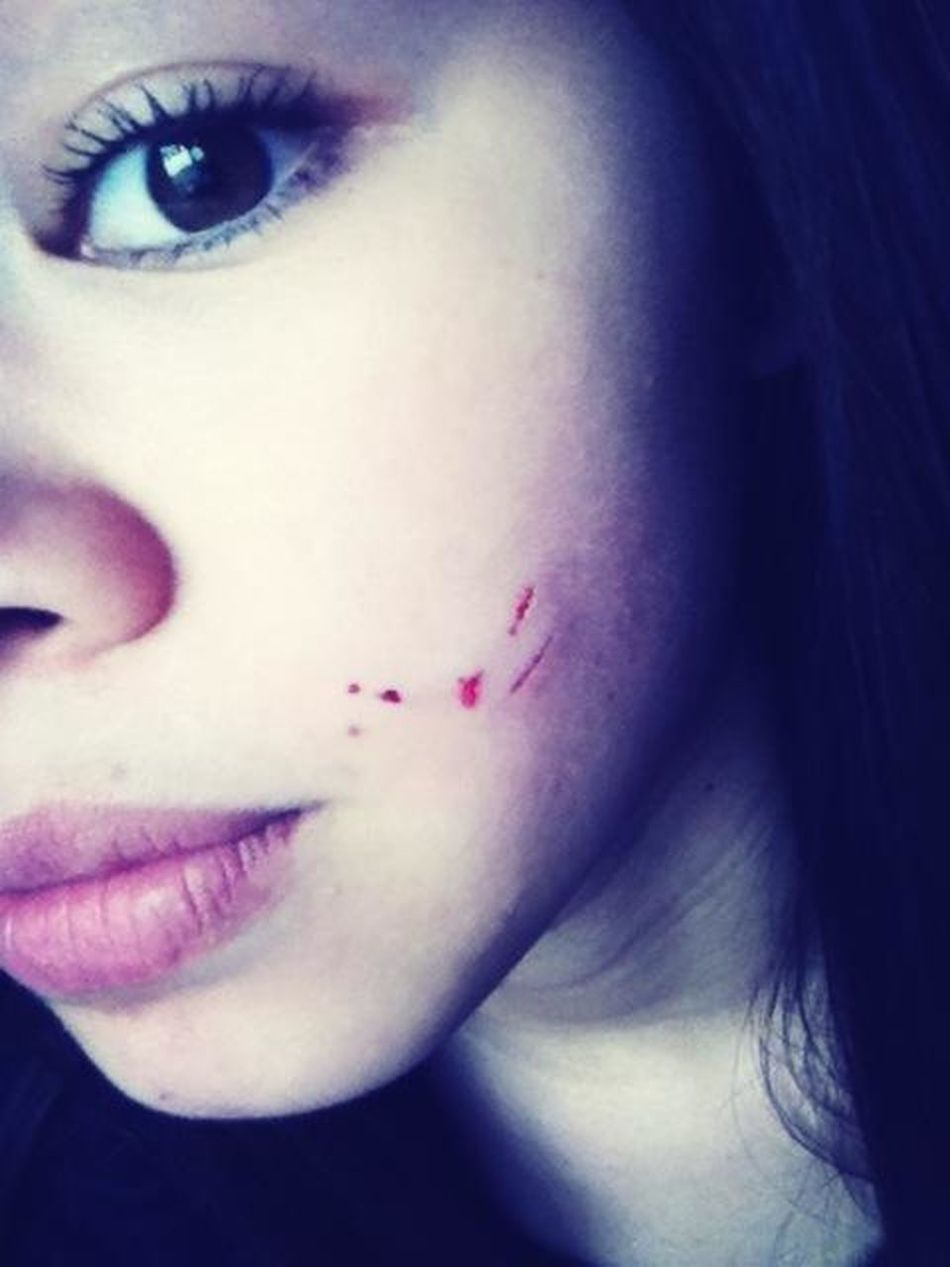 Lol Thanks To My Brother My Freaking Dog Bit My Face