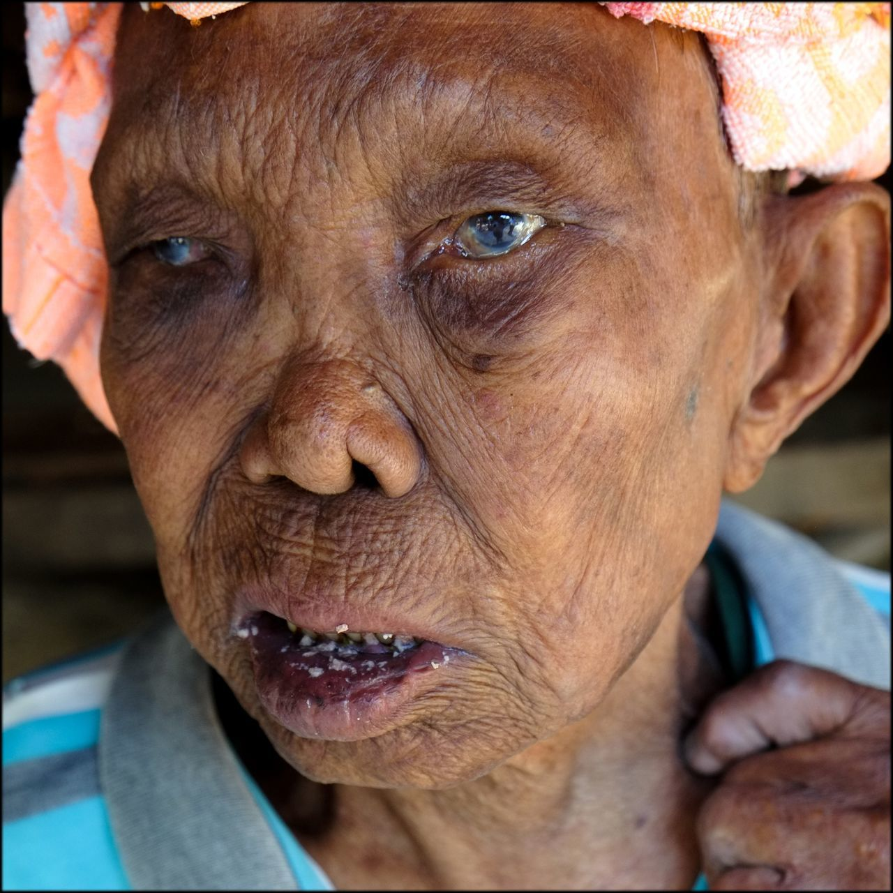 Leprosy Sufferer Monochrome Portrait Leprosy Mission