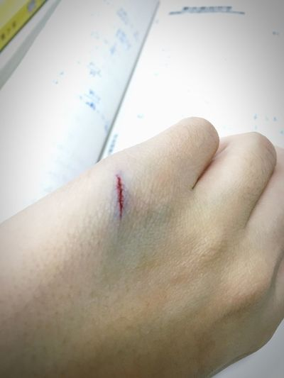 Makeup Scar Paint Sorrow ouch! Don't hurt! Painted with my gel pen