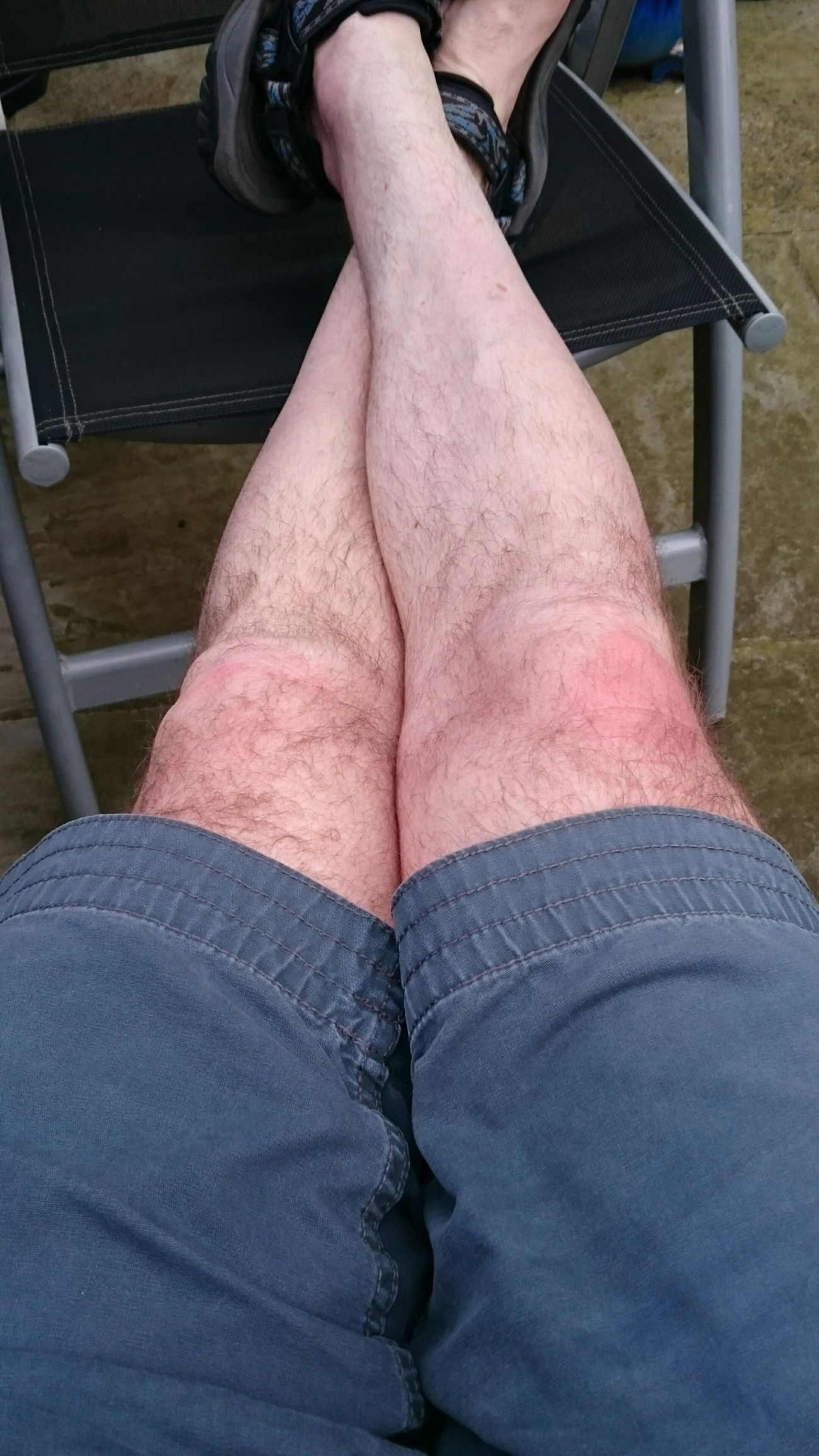 Legs Not So Pretty Selfie