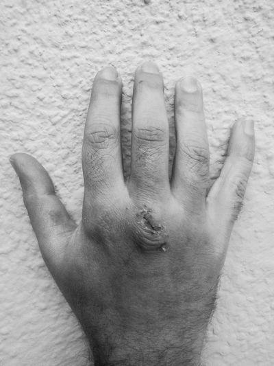 Blackandwhite Hand Human Body Part Human Hand Monochrome Monochrome_life Scar Wounded