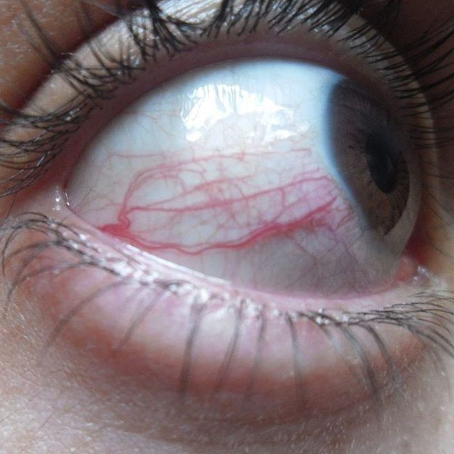 Cuando tienes un mushi en tu ojo. 😰 Eye Red Brown Bigeye Mushi Mushishi Notfilter