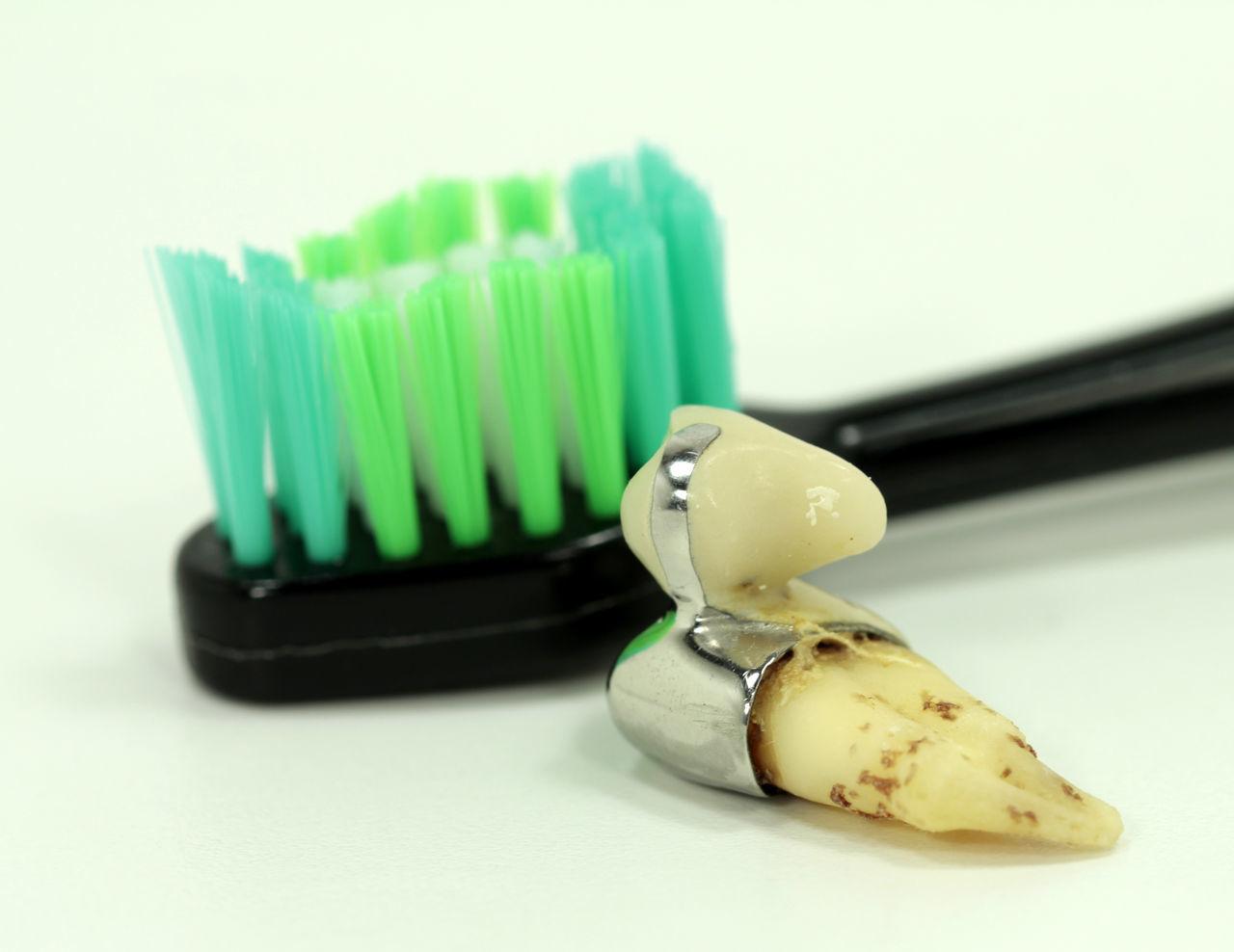 Brushing My Teeth Brücke Close-up Dental Gebiss Gebiss Green Color Hygiene Krone No People Teeth Zahn Zahnbürste Zahnbürste Zahnprotese