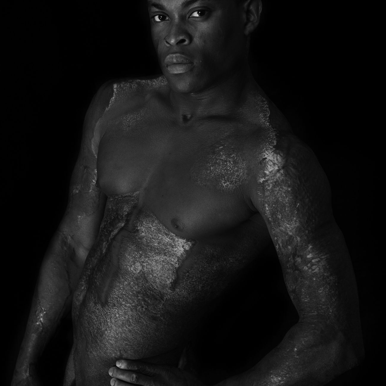 the power of embracing your difference BodyDiversity SOSea Portrait Scars