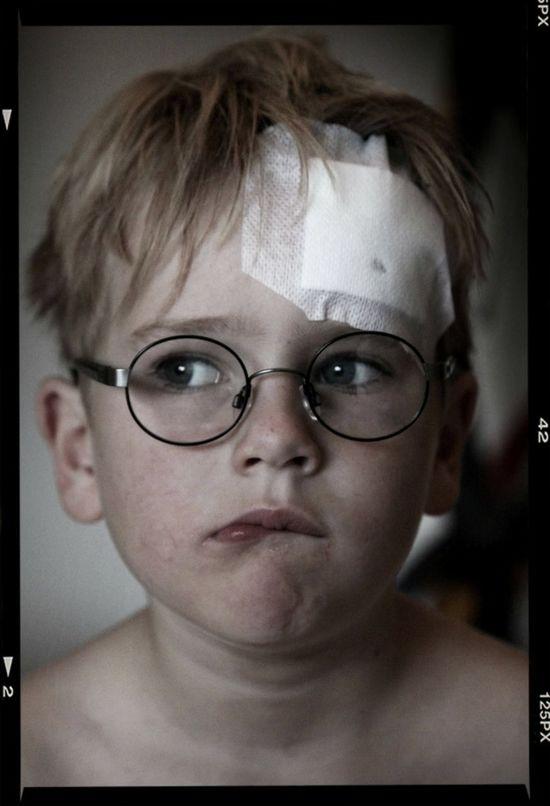 Boy with band aid Portrait Glasses Boy