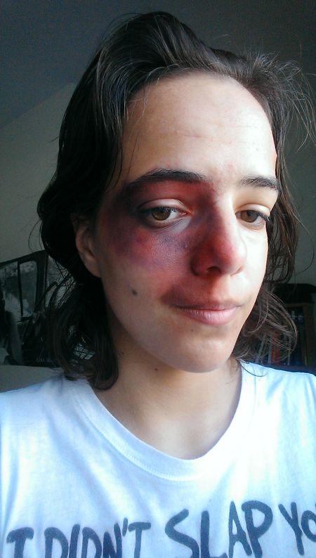 Practicing stage makeup Spfx Makeup Bruise Blood Gore