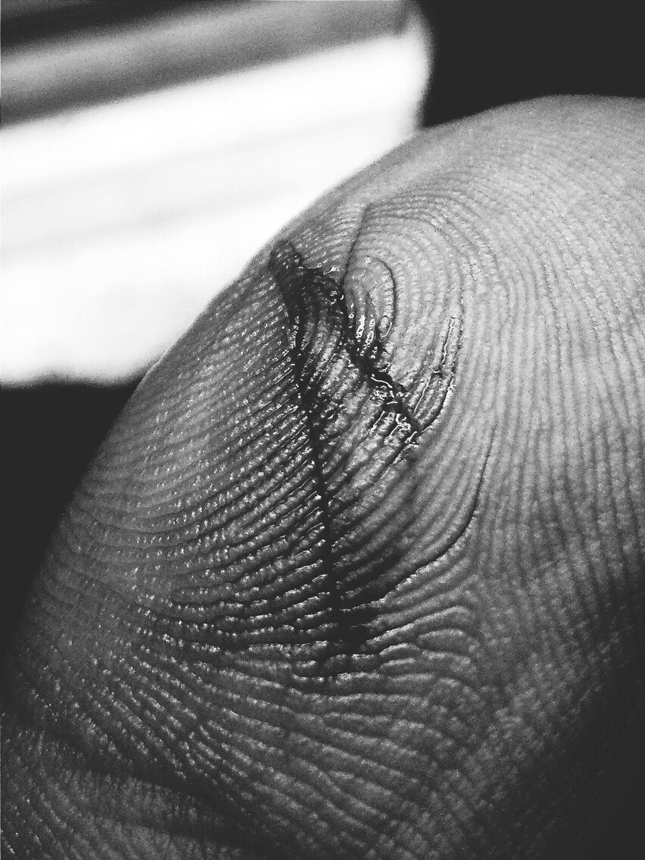 The skin i live in. Blackandwhite Skin Geometry The Illusionist - 2014 EyeEm Awards