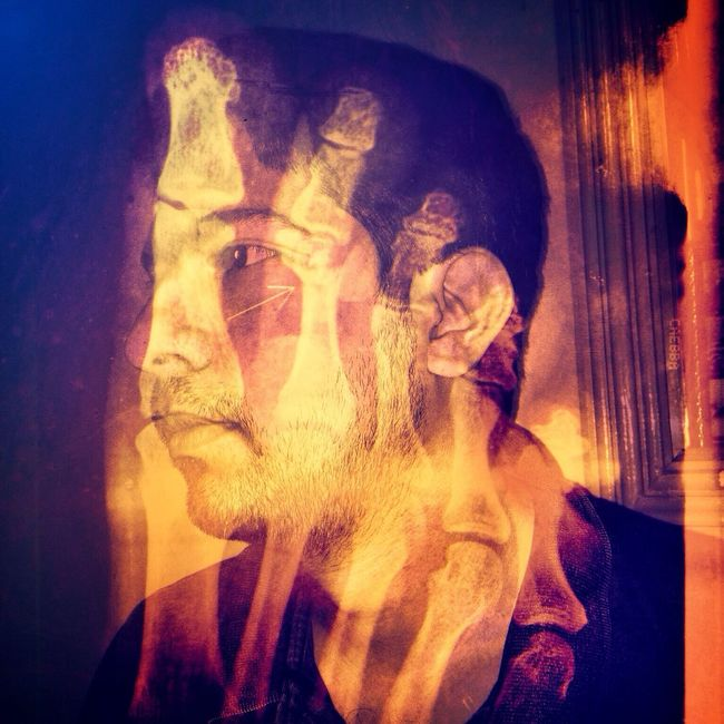 'Three Weeks' Double Exposure Xray Portraits