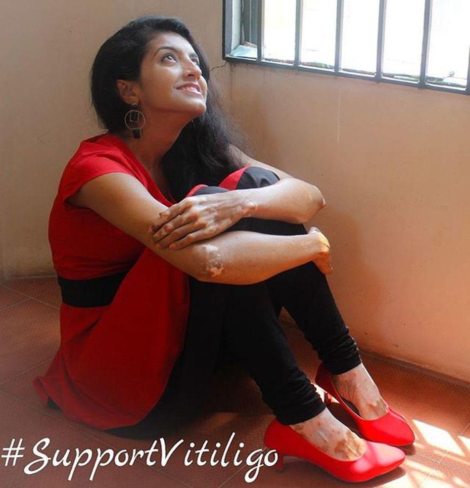 P.C : G.J. Shruthi Supportvitiligo Sushamita Supportvitiligoawareness Vitiligo Vitiligowarrior Vitiligoworld Vitiligo Vitiligonation Awareness