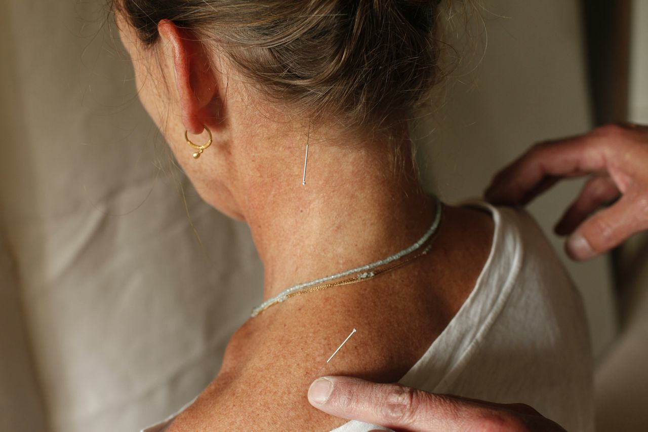 Doctor  Nhs Medical Medicine Acupuncture