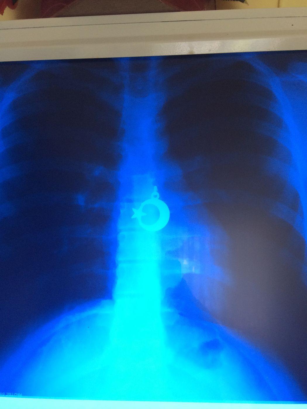 Akciğer Röntgen Yürek Ay Yıldız Good Hastane Turkey Kastamonu Arac EyeEm Gallery Interesting
