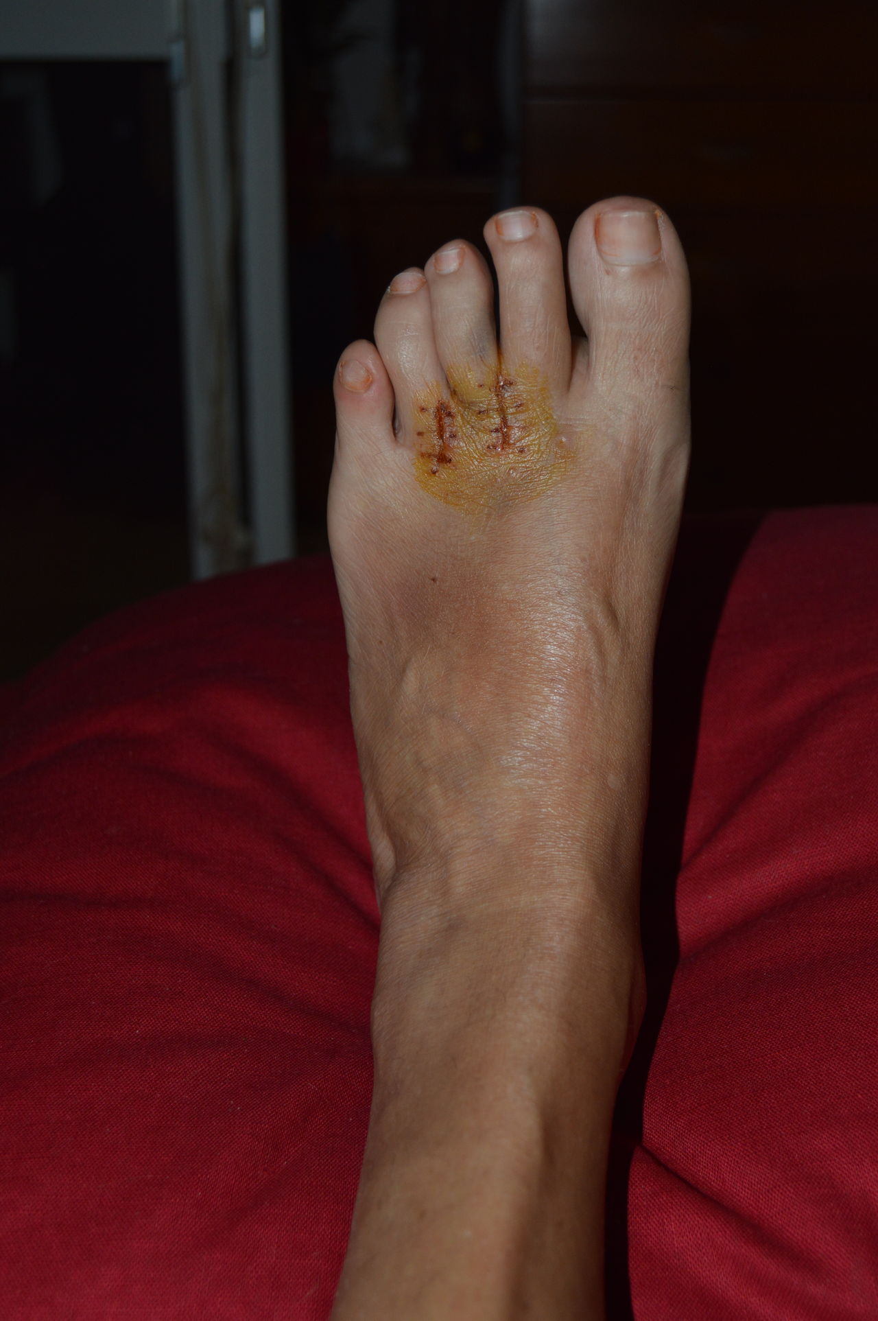 EyeEm Best Shots EyeEm Gallery EyeEmBestPics Foot Mortonneuroma Myleftfoot Recovering Surgery