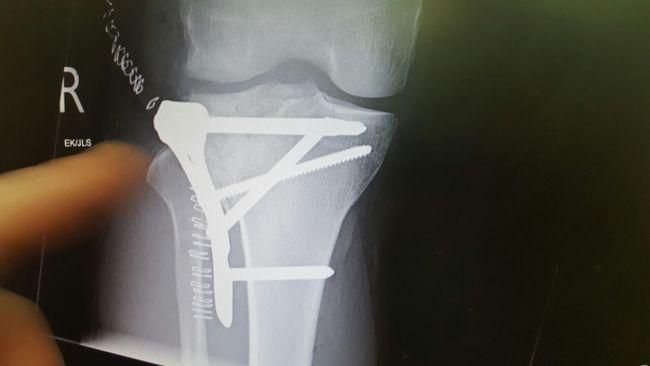 Screwing literally Legs Selfies Throughmyeyes My Lovley Leg With A Few Xtra Bits Lol My Legs X Ray Bone