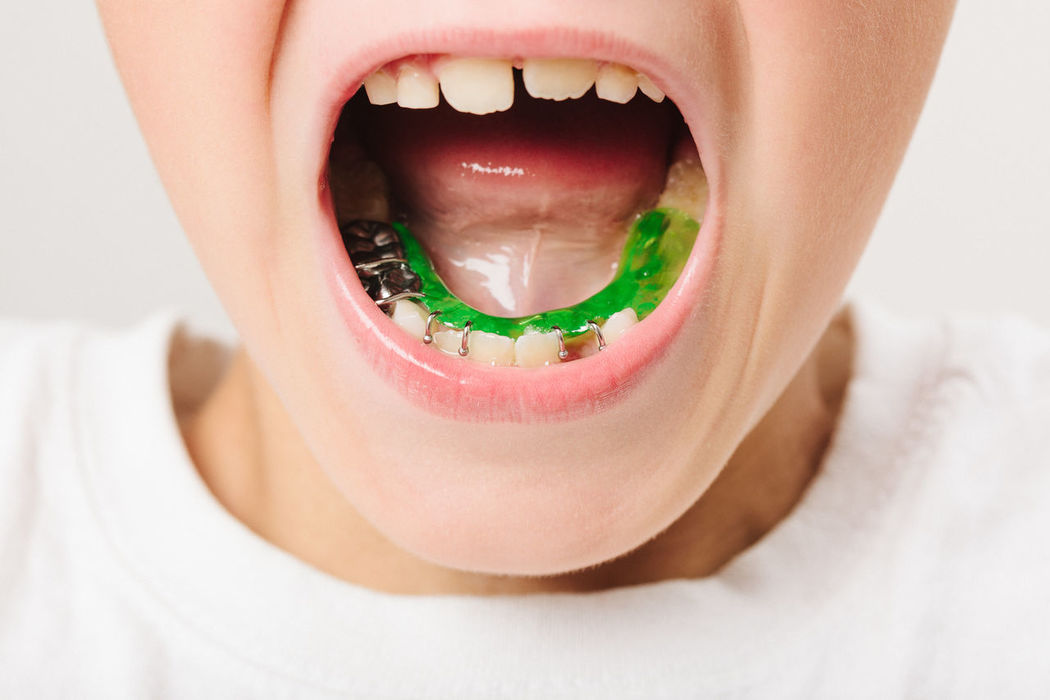 Correction Dentistry Brace Close-up Day Dental Health Dentist Human Body Part Human Mouth Human Teeth Indoors  Mouth Open One Person People Real People Retainer Teeth Young Adult