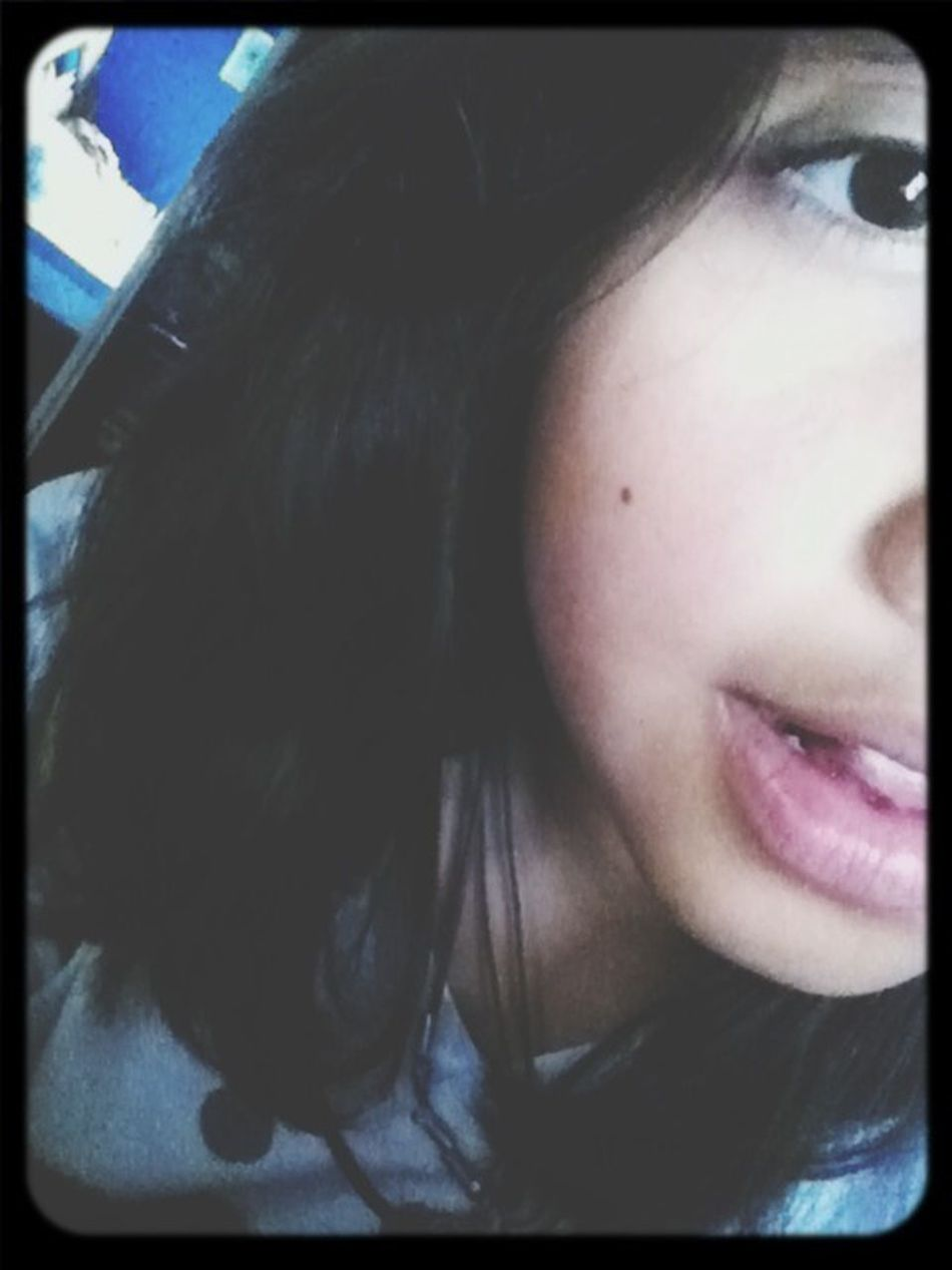 My Face Lol