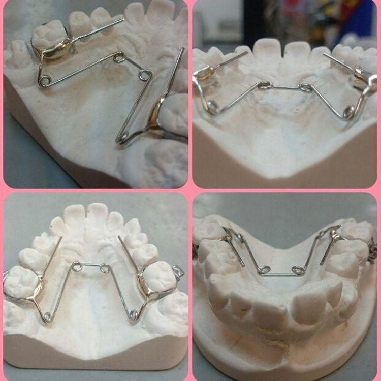 My latest, quite proud of the soldering Orthodontics Ortho Wirebending Soldering Retainer Dentaltechnician Dentalschool Quadhelix