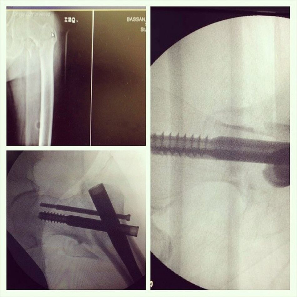 Hip fracrure from last night Hipfracture Ortho Orthopedicsurgeons Ortopedia orthopedics medicina md trauma fracture