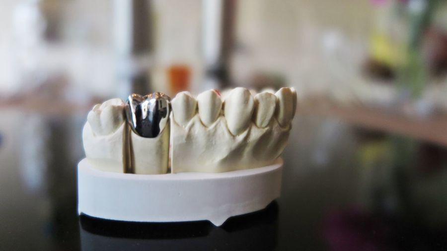 Tooth Teeth All We Need Keep Smiling Smile Denture Dentist Dentistry Dental Dental Assisting Dentaltechnician Silver  Modell Still Life No People EyeEm Gallery Right In Front Details Plastic Plaster Plaster Model Form Lieblingsteil