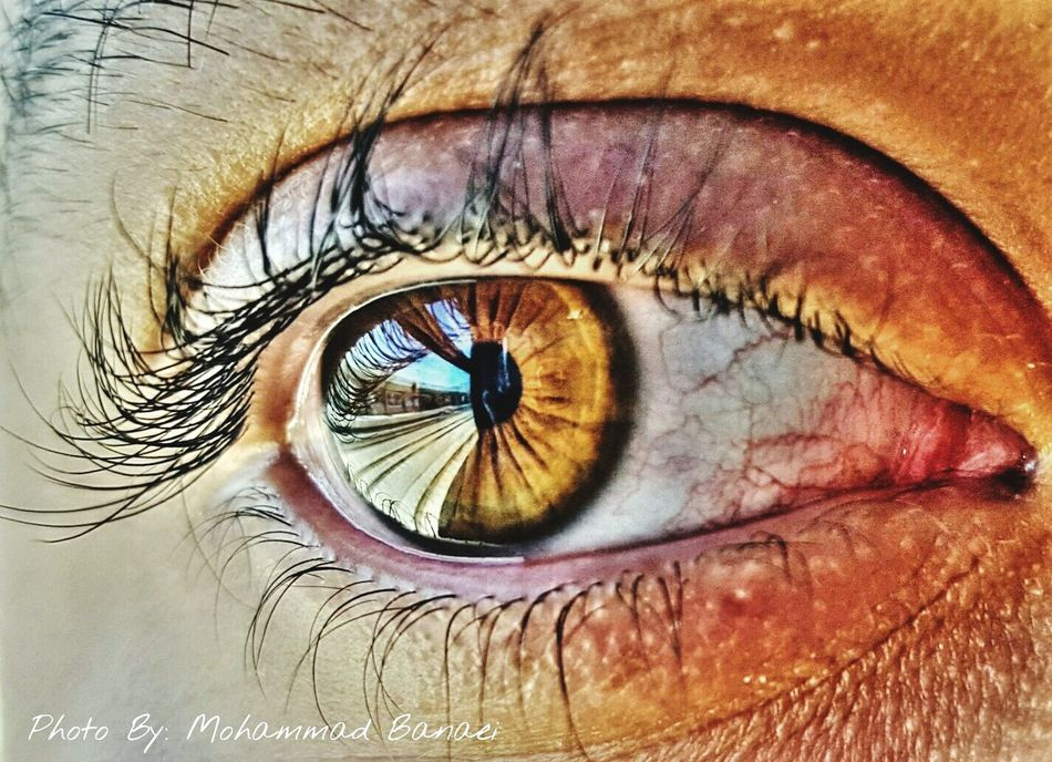 چشم Eye Life قطار