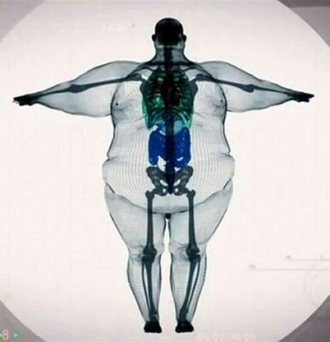 You Have Not Big Bones Only You Are Fat