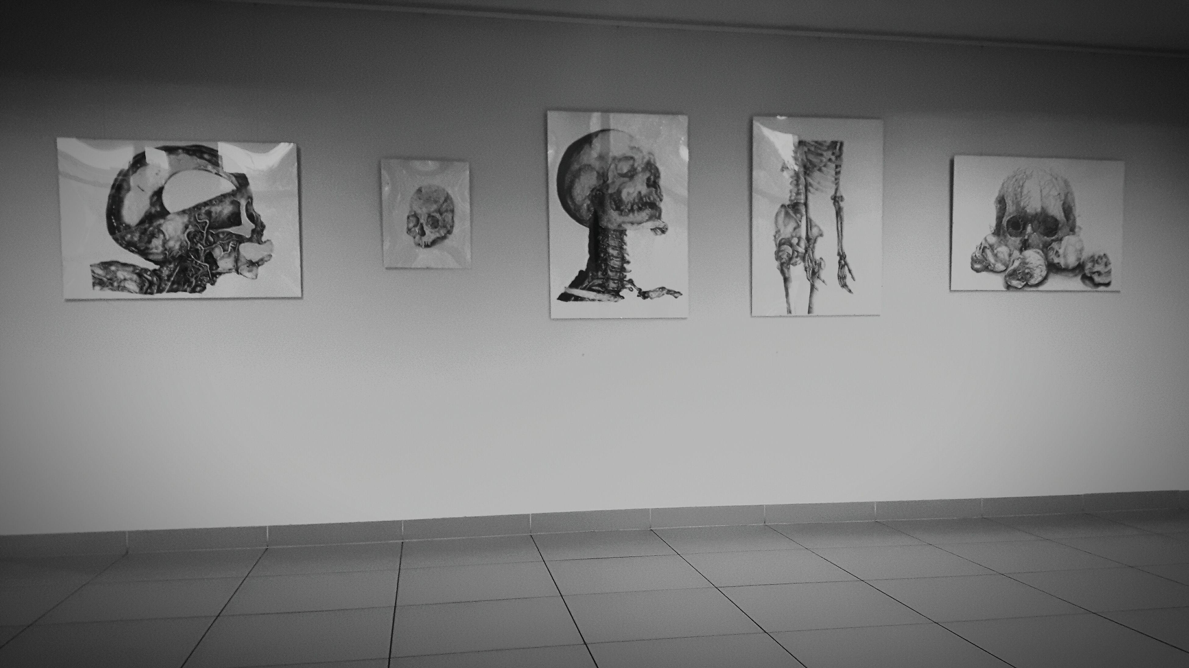 """Undo my sad"" 💀☀ Art Bones Skeleton Skull Blackandwhite Sadness Hopelles Nothingness"