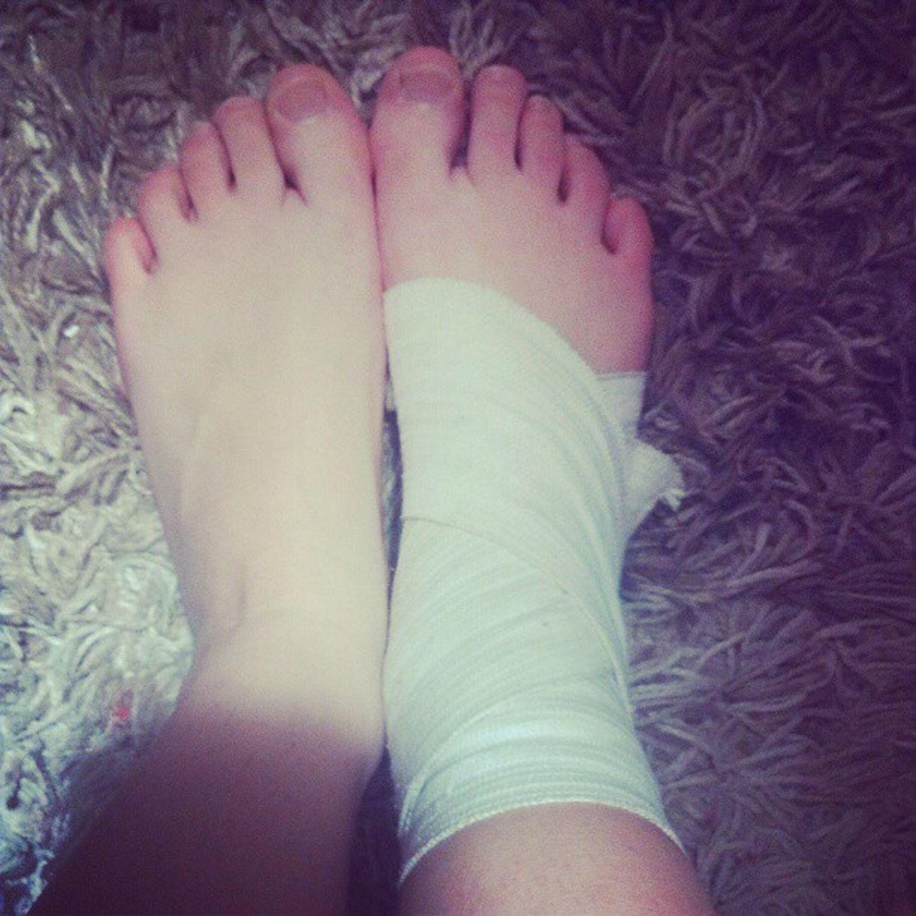 Нога Боль кульгаю :(