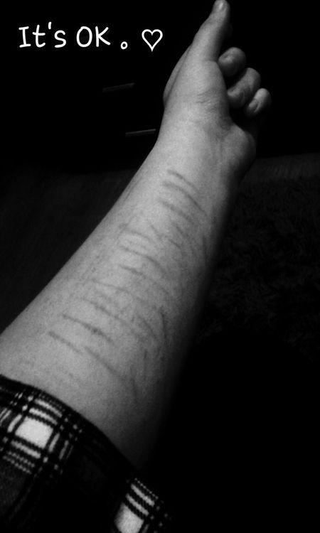 My beautiful hand ♡♥ Hatemyself I Hate My Body I Hate My Life I Hate Myself I Hate My Smile. I Hate You ♡♥♧♣●□○◇♧◆◆◇▶▼↑