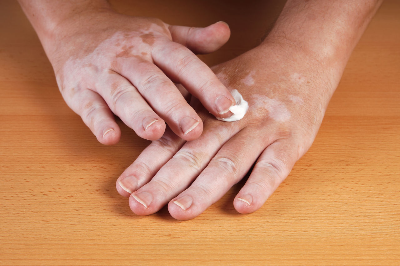 Cropped Hand Of Man With Vitiligo Applying Cream On Hand At Wooden Table
