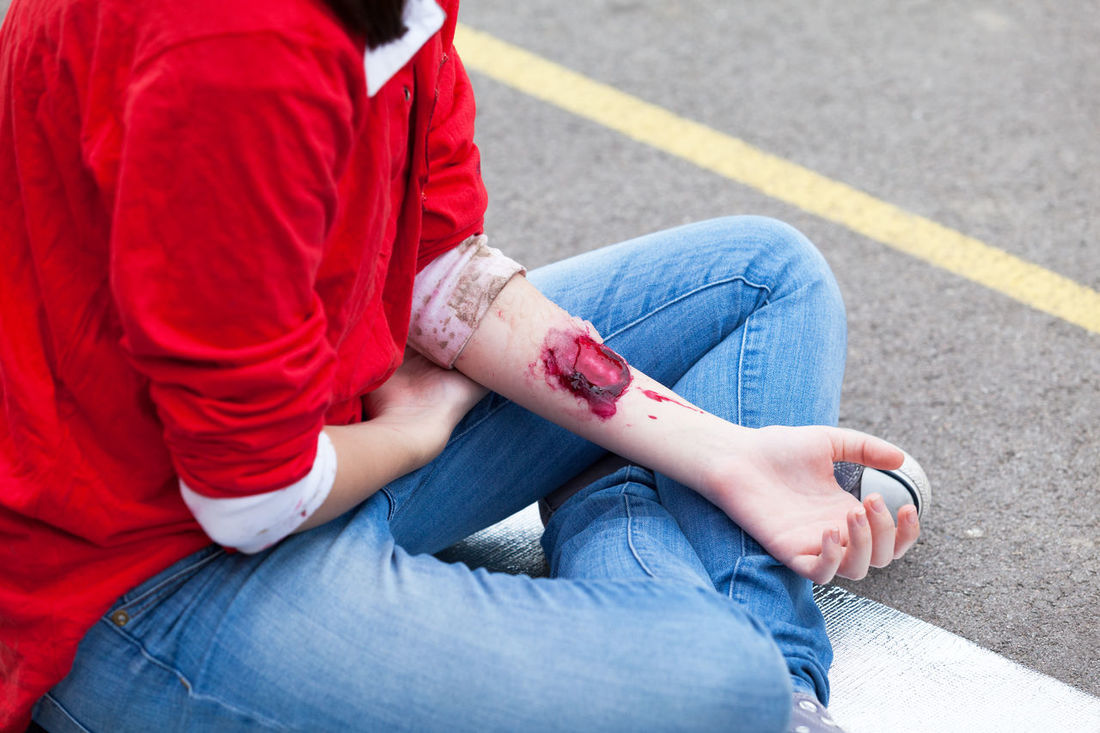 Arm injury. Traffic accident. Wound Damage First Aid Training Healthcare Pain Accident Arm Blood Flesh Hand Health Human Skin Hurt Injury Painful Patient Physical Injury Scar Stage Makeup Traffic Accident Trauma