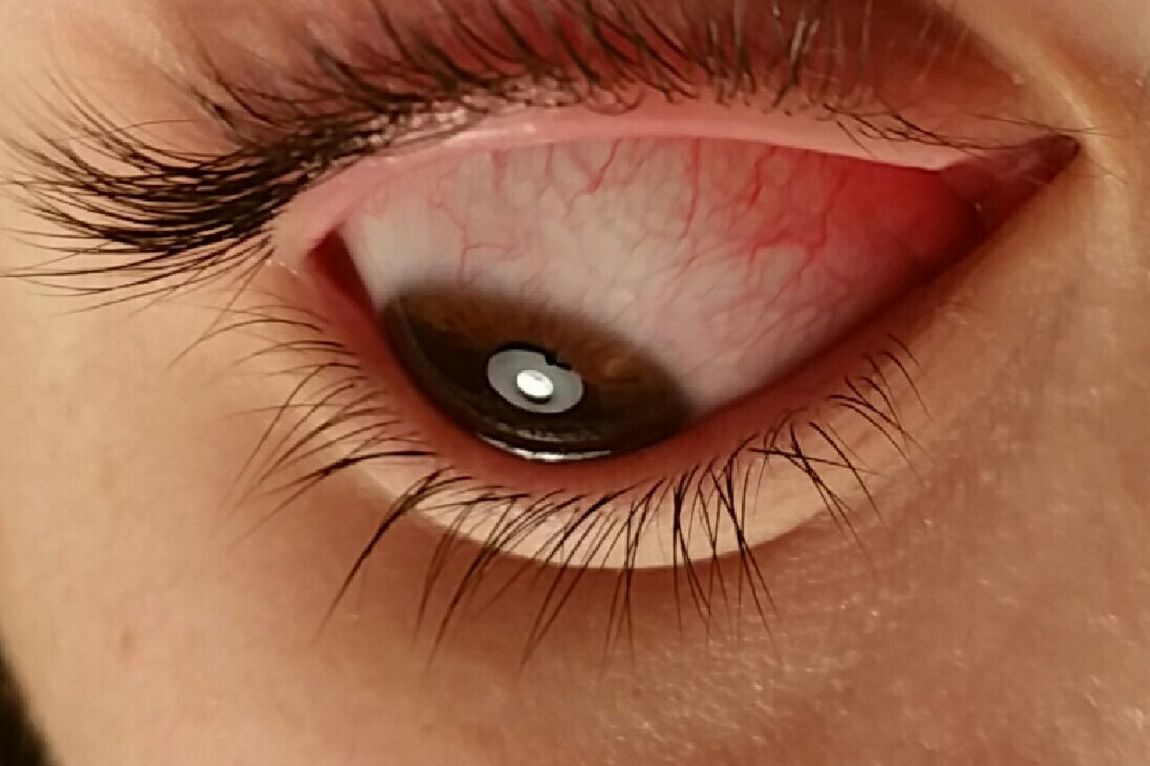 Eyeball Face Blood Vessels Pink Eye Sick Different Perspective Eye Lashes EyeEm Best Shots Close Up Eye