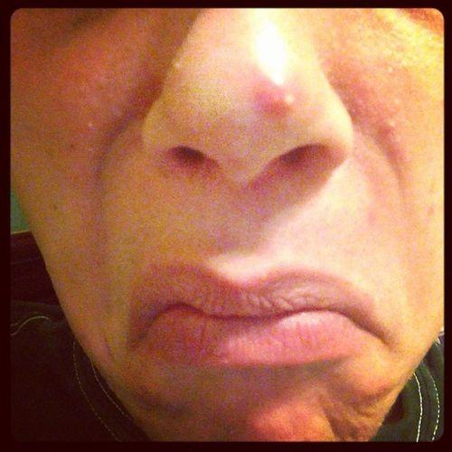 Werenotakesyspretty Pimples Eww Omfgwhydoialwaysgetwhiteheadsughhhh