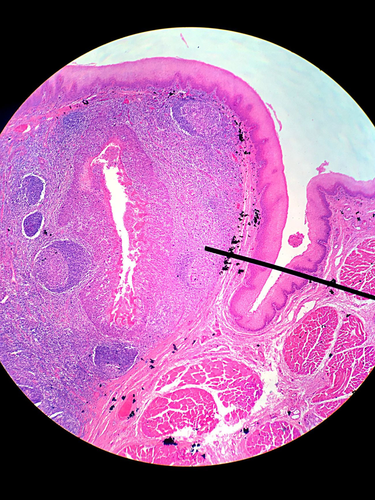 Tonsil Pink Color Multi Colored Science Histology Microscope Purple Anatomy Class Anatomy