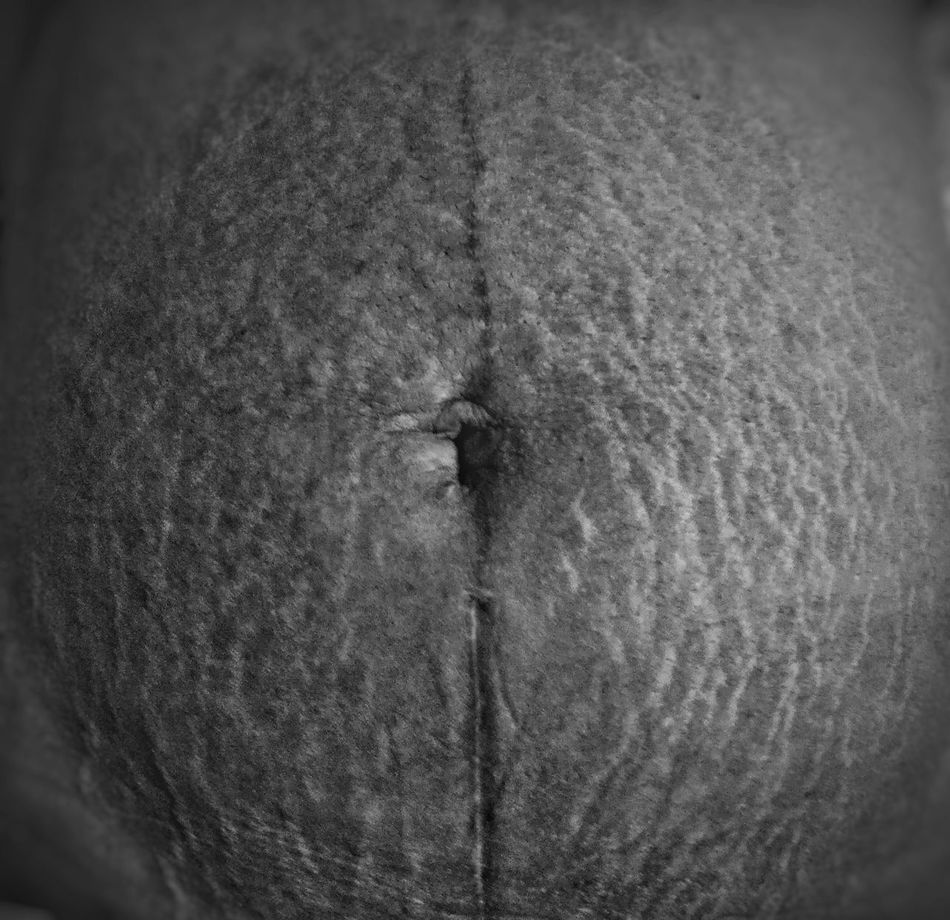 """""""Her stretch marks were lightning strikes of life, proving she could weather the storm"""" - DesireeMarie Close-up Textured  Stretchmarks EyeEm Best Shots - Black + White Blackandwhite Photography Black And White Streetphoto_bw Blackandwhite First Eyeem Photo EyeEmNewHere EyeEmBestPics EyeEm Best Shots Eyeem Philippines Photooftheday Adults Only One Person Lines&Design Lineart Lifestyles Lines Lines And Shapes Lines And Design Lines And Shadows Textured  Fashion Photography EyeEm Diversity"""