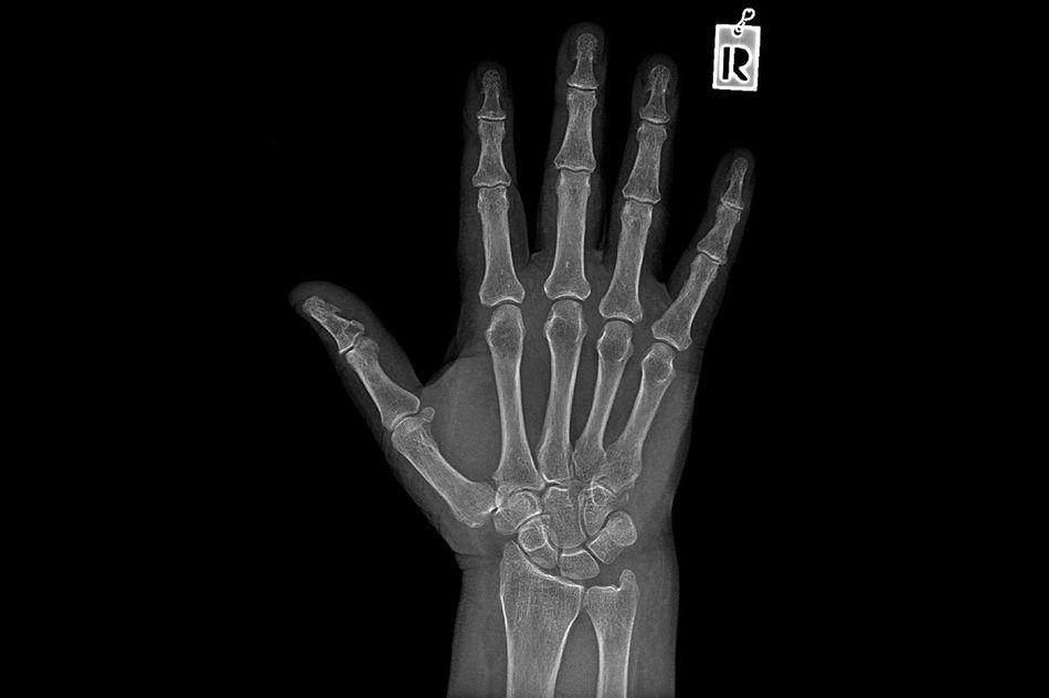 Negative X ray image of human hand Rheumatism Anatomy Black Background Bone  Bone Fracture Close-up Diagnosis Finger Hand Health Hospital Human Body Part Human Finger Human Hand Medicine Negative Orthopedics Radiograph Radiology Rheumatism Sick Ulnae Wrist X-Ray X-ray Examination X-ray Picture