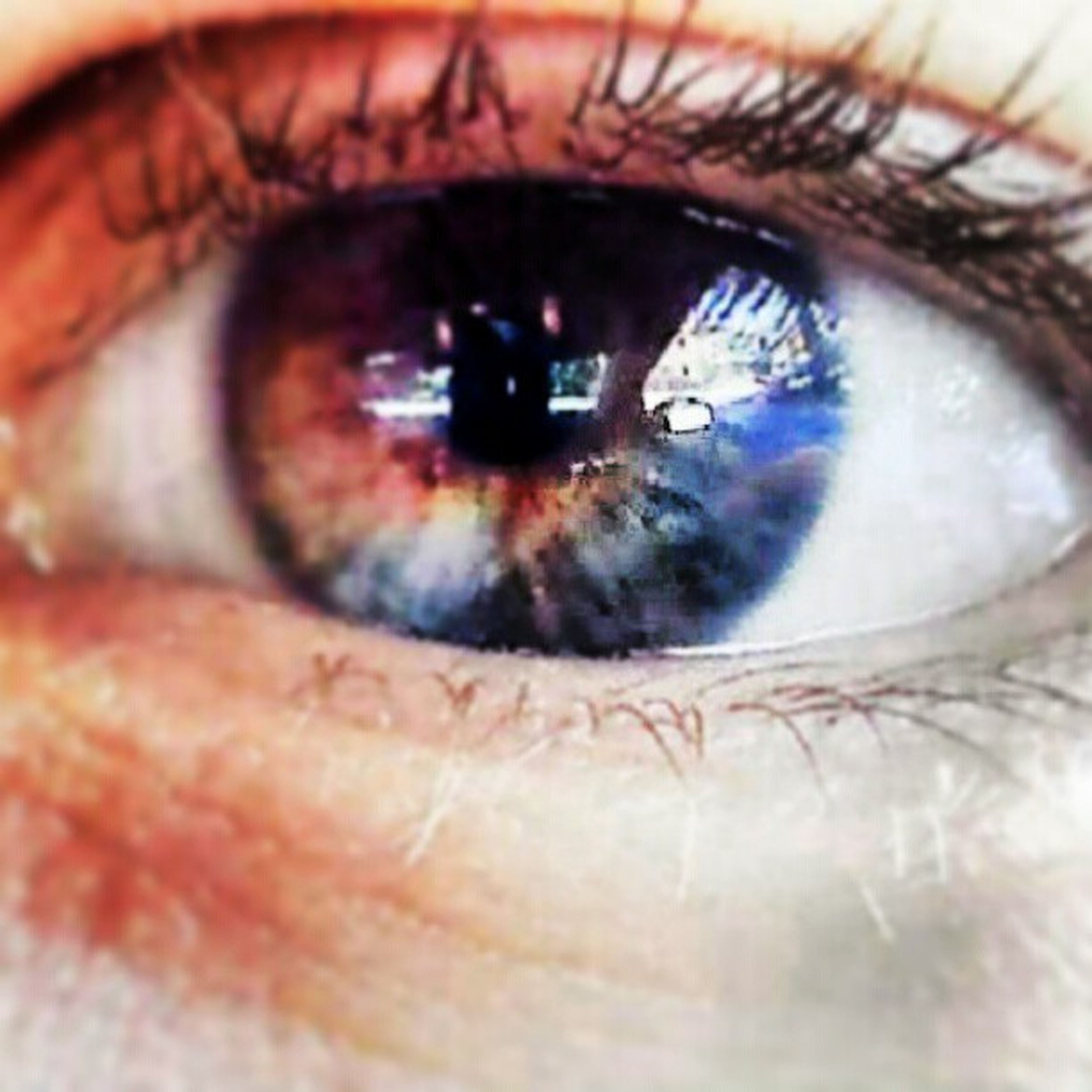 Occhio Mosaicismosomatico IRide