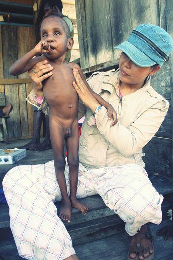 salah satu anak gizi buruk di kampung Keakwa Timika Papua Indonesia Childhood Mallnutrision First Eyeem Photo