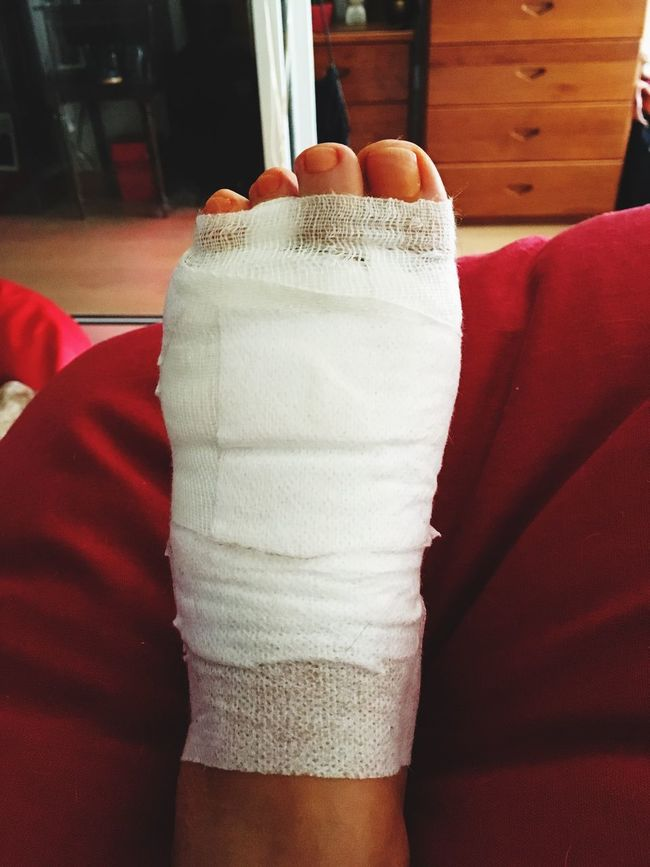 Myleftfoot Mortonneuroma Operated