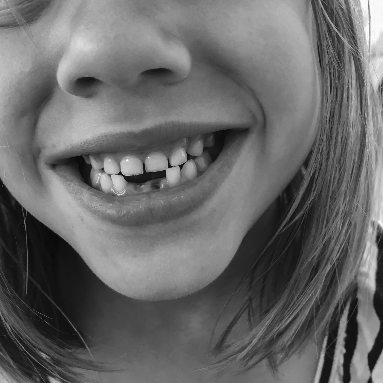 Adult Cheerful Child Childhood Close-up Dental Health Fun Gap Toothed Happiness Healthcare And Medicine Human Body Part Human Face Human Lips Human Mouth Human Teeth Indoors  Little Girl Mouth Open One Person People Smiling Teeth Toothy Smile Young Adult Young Women
