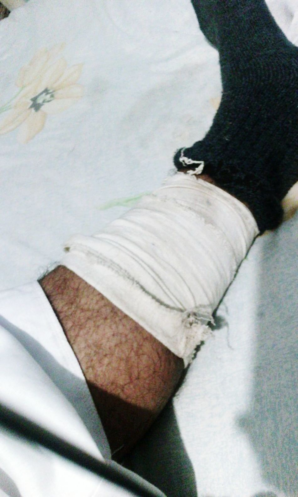 Hi! That's Me Accident My Leg Hurts Feeling Pain Hello World People Pray For Me :'( :'( :-(