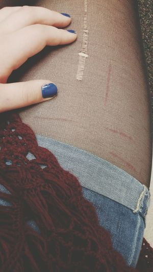 Tights Shorts Lace Cotton Fashion Edgy Edgy Fashion Rip Ripped Tights Cut Cuts Scars Scar Hand Leg