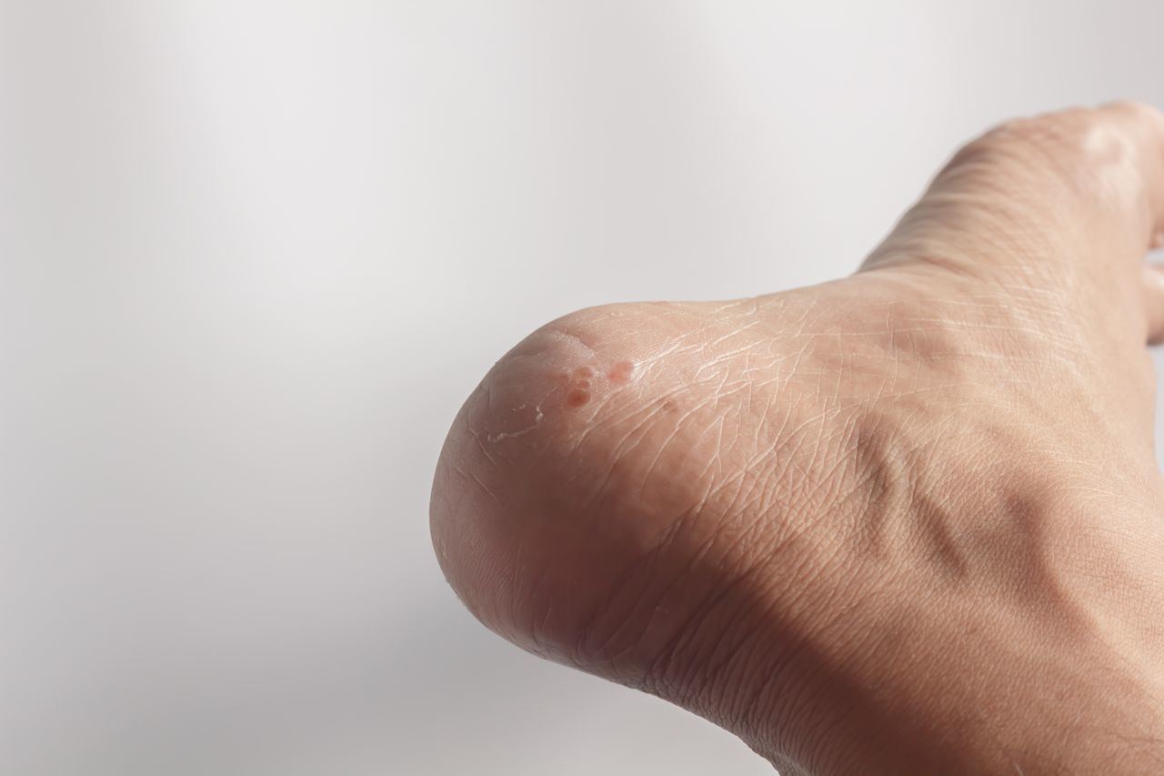 human body part, one person, human skin, real people, close-up, human hand, healthcare and medicine, men, day, people