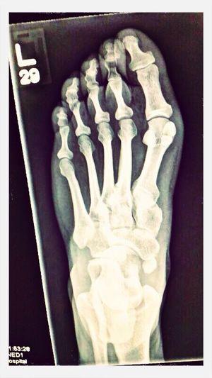Fracture Black & White Foot Enjoying Life my broken foot