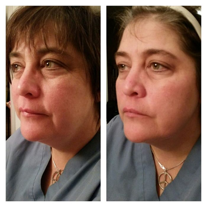 Anti aging is right. This cream was applied and the results were in 15 minutes! We were both shocked. I love my happy customers :) interested in keeping your skin youthful? Visit www.seacretdirect.com/blairekitchen Skincare Antiaging Youth Radiant Recovermask SEACRET TheDeadSea