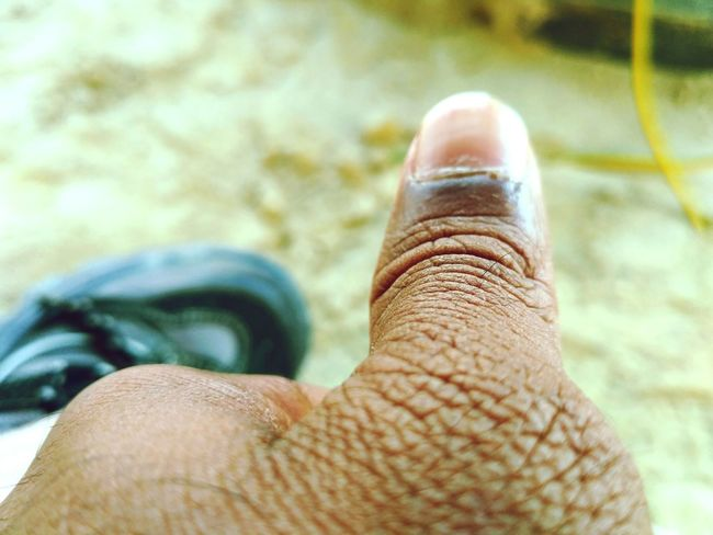 Human Body Part One Person Personal Perspective Close-up Skin Human Hand One Man Only Adult People Ugly Me