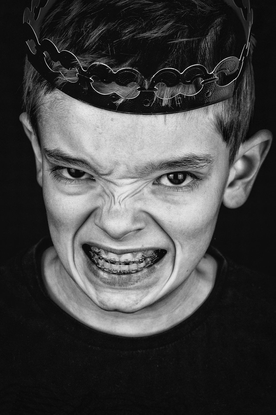 Beautiful stock photos of crowns,  12-13 Years,  Anger,  Boys,  Braces