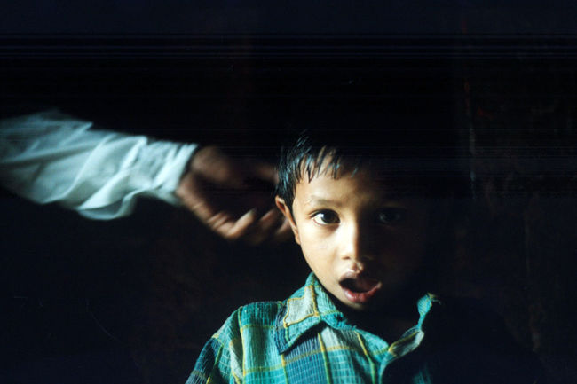 Child Serious Shock